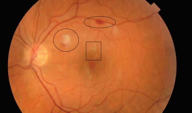 Fundusfotografi af venstre øje med synsnerven til venstre.
