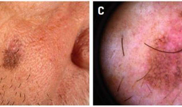 Vekslende pigmenteret tumor (10 × 7 mm) på højre kind hos en 73-årig mand.